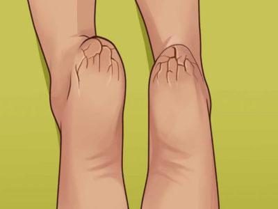 Вас больше никогда не будут беспокоить сухие и потрескавшиеся ноги