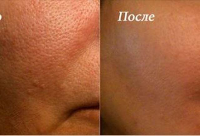 Применяй эти супер средства и за 3 дня все открытые поры исчезнут с вашей кожи навсегда!