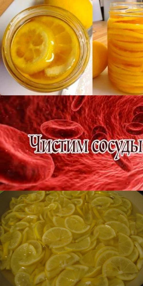 Это средство поможет быстро очистить артерии и укрепить организм