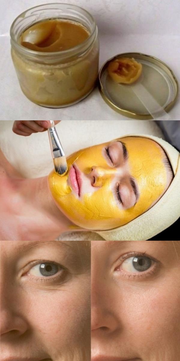 Сенсация! Всего 1 капля йода может полностью преобразить вашу кожу! Супер омоложение за копейки!