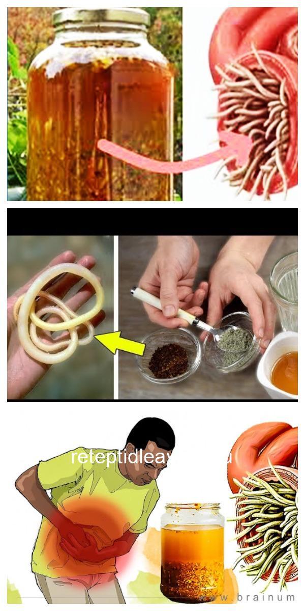 Это средство излечивает любую инфекцию в организме и убивает всех паразитов! Старинный, уникальный рецепт!