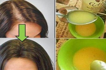 Врачи удивлены: Используйте это средство и ваши волосы будут расти как сумасшедшие!