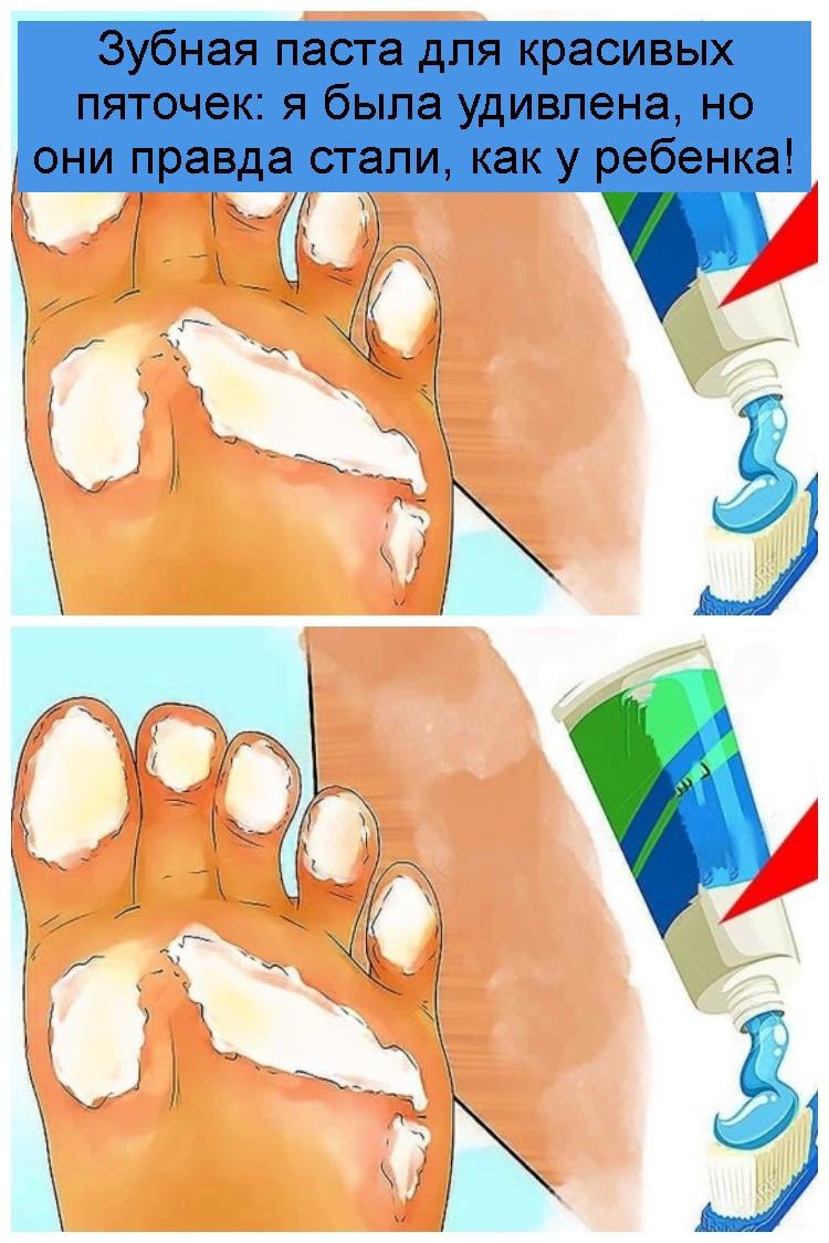 Зубная паста для красивых пяточек: я была удивлена, но они правда стали, как у ребенка 4